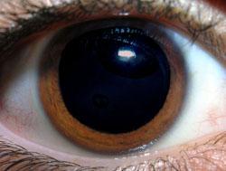 עין בריאה עם אישון מורחב מאוד