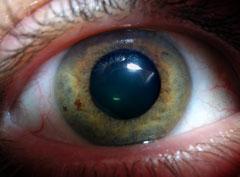 עין ירוקה עם אישון רחב