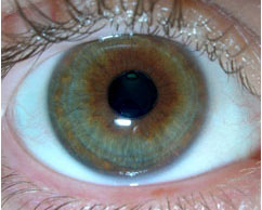 תמונת העין- אישון צר