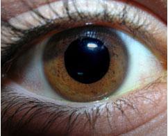תמונת העין- אישון רחב