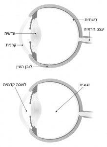מבנה העין ופירוט חלקיה השונים