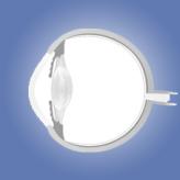 אנטומיה של העין לסטודנטים לרפואה: חלק ד' (רשתית, עצב הראיה, זגוגית)