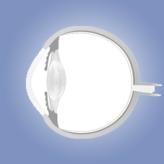 אנטומיה של העין לסטודנטים לרפואה: חלק ג' (עדשה, Uvea, קשתית, הגוף הסיליארי, כורואיד)