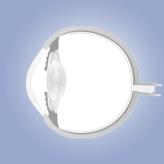 אנטומיה של העין לסטודנטים לרפואה: חלק ב' (קרנית, לובן העין, לחמית, Tenon's capsule, לימבוס)