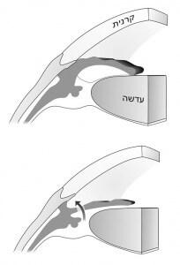 שחרור הלחץ בגלאוקומה של זוית-סגורה באמצעות טיפול לייזר