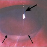 <span>Photo Quiz: Painful Red Eye After Surgery</span>