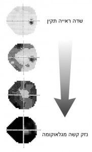 פגיעה הדרגתית בשדה הראיה כפי שמודגמת בבדיקת שדה-ראיה