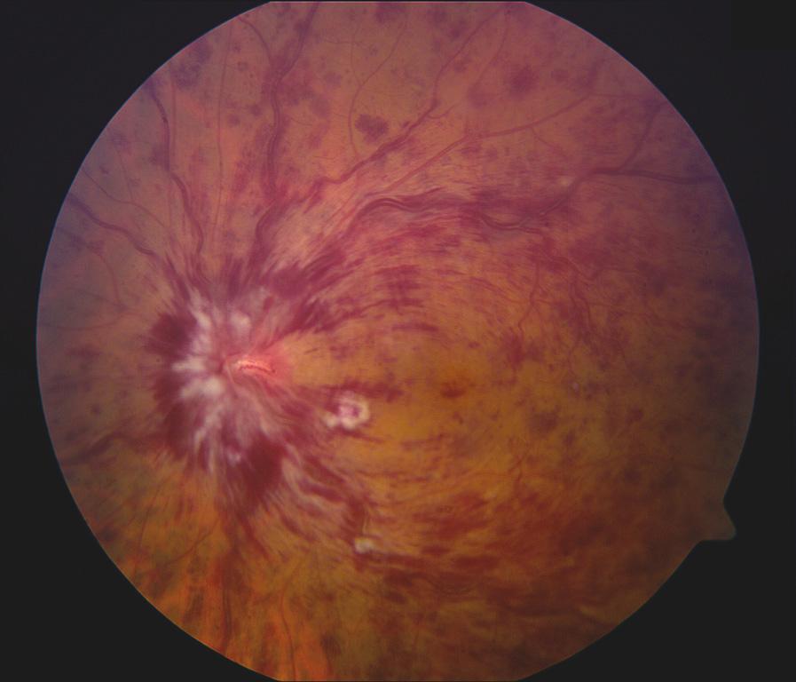 רשתית העין לאחר אירוע של חסימת וריד הרשתית המרכזי