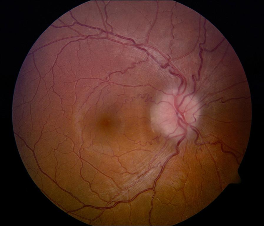 עצב ראיה בצקתי ומסביבו כלי-דם מפותלים