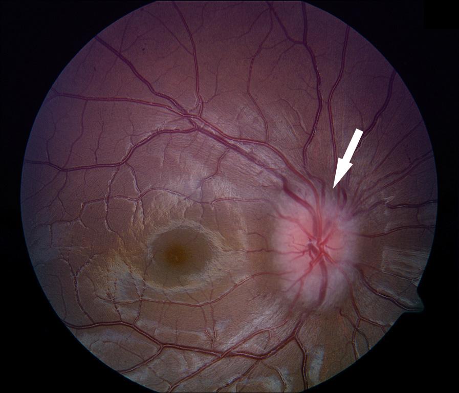 עצב ראיה מורם ובצקתי ביותר