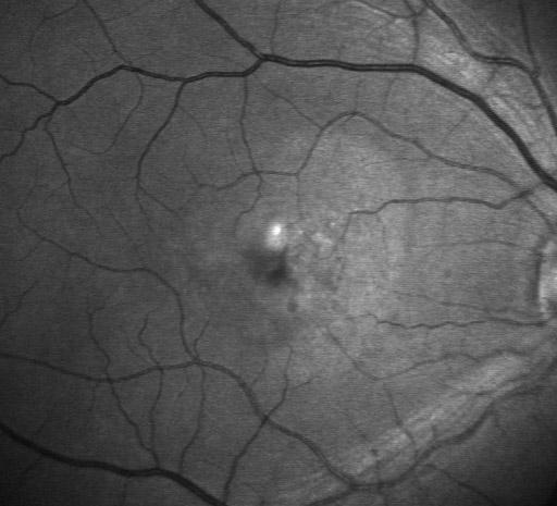 נקודה זוהרת נראית בצילום שבוצע במהלך בדיקת פלורסצאין. זוהי עדות לדלף מכלי הדם שעלול לגרום לבצקת של הרשתית (או לבצקת מתחת לרשתית) באיזור המסויים הזה