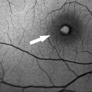 צילום פלורסצאין המדגים חור מקולרי המודגם ככתם לבן במרכז המקולה