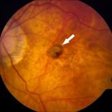 ניוון מקולרי גילי שנגרם בעין עם מיופיה (קוצר ראיה) גבוה.