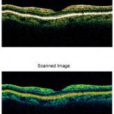 סריקה של הרשתית באמצעות מכשיר OCT, בחתך שעובר דרך מרכז הראיה מדגימה עין בריאה